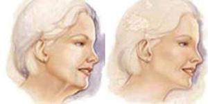 Illustration après Docteur Layoun