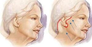 Illustration avant Docteur Layoun